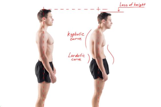 Cyphose posture haut du corps